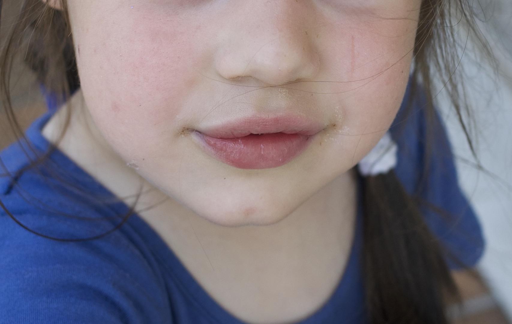 bocca Emma